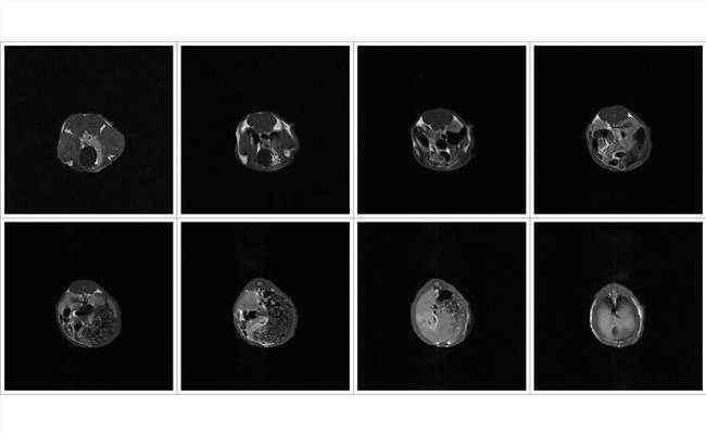 核磁共振MRI